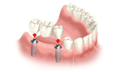 punte pe implant