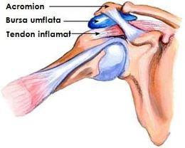 bursita umar forum artroza posttraumatică a genunchiului 1 grad