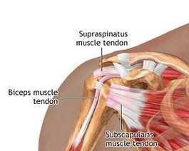 Tendinita, Tendinita - Ortopedie ArcaLife