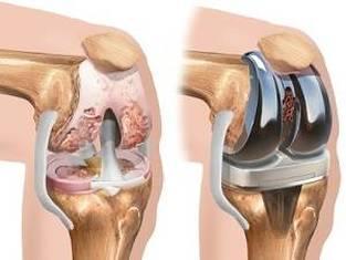 cum să scutiți exacerbarea artrozei genunchiului