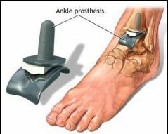 Este posibil să circulați cu artroza articulației gleznei. Durerea de glezna